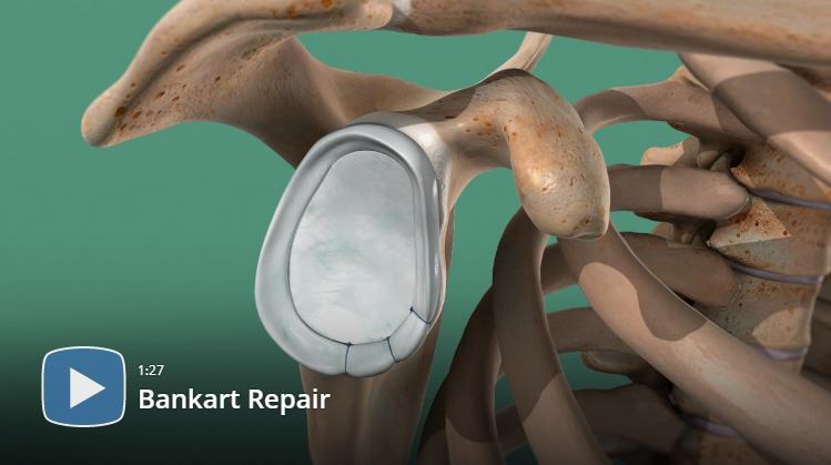 arthroscopic bankart repair